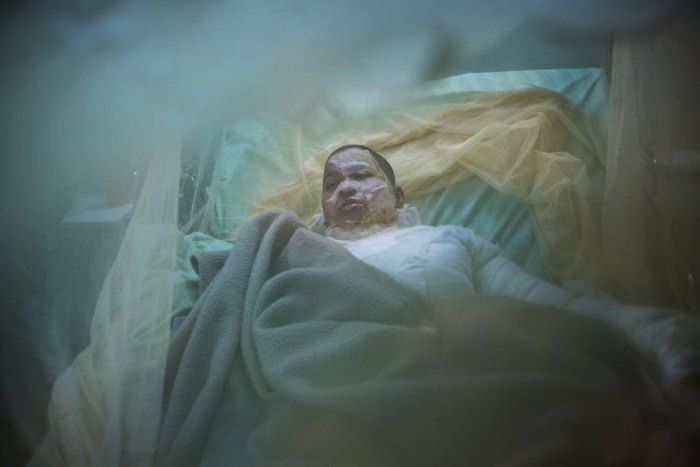 Lingering Scars é o nome da série de fotos criada pela fotógrafaFarzana Hossen. Nessa série, ela documenta a vida das mulheres que sobreviveram a ataques de ácido no Bangladesh, onde a violência contra mulheres é crescente.